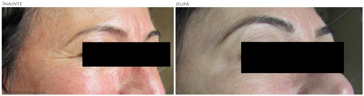 botox fall slăbici înainte și după