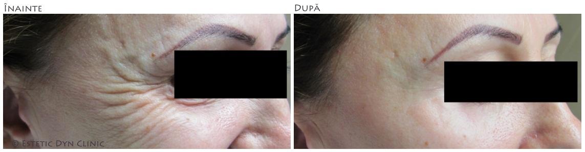 botox fall slăbici înainte și după pierderea de grăsimi kaskus