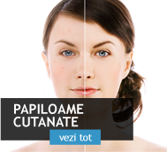 papiloamele-cutanate-verucile-pediculate